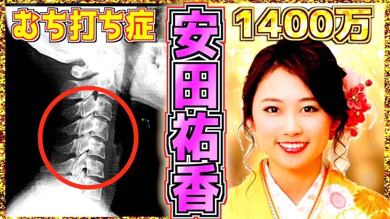 【安田祐香】首の悲劇と4kg激ヤセにも負けないエリート超美少女 ゴルフ